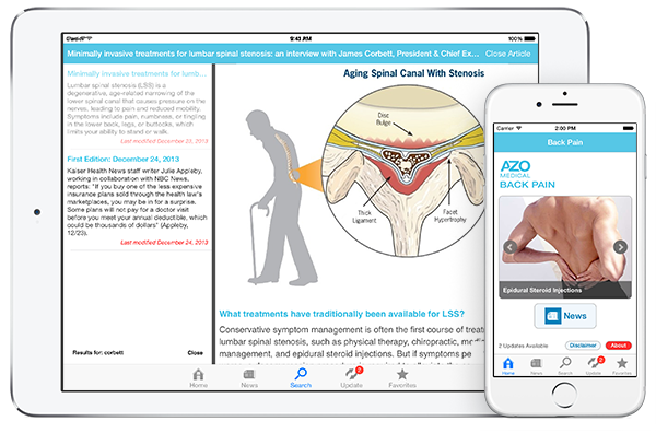 Back Pain by AZoMedical App screenshots