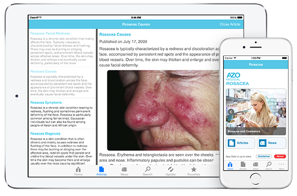 Rosacea by AZoMedical App screenshots